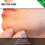 Vrij van acne
