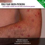Vrij van skin-picking